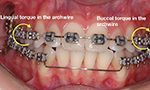 Can asymmetries in the smile be corrected with Orthodontics?
