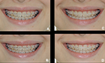 Is there aesthetic difference between the different orthodontic wires used with porcelain braces?