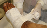Treatment of difficult-to-heal venous ulcers with fibrin sealant