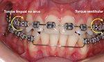 Assimetrias no sorriso podem ser corrigidas com Ortodontia?