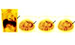 A importância de modalidades avançadas de imagem em benefício ao diagnóstico da sarcoidose cardíaca